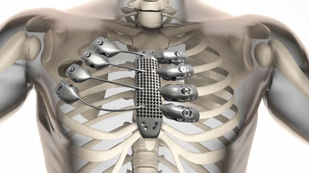 بدنبال چاپ سه بعدی (3D-printed) استخوان پاشنه و چاپ سه بعدی محافظ دهان برای بیماران مبتلا به آپنه خواب (نوعی اختلال خواب) و اولین موتور جت چاپ سه بعدی شده جهان، آزمایشگاه شماره 22 در CSIRO استرالیا با طراحی و چاپ یک جایگزین استخوان جناق و قفسه سینه تیتانیومی برای یک بیمار مبتلا به سرطان 54 ساله، نمونه ای دیگر به لیست در حال رشد چاپ سه بعدی ایمپلنتهای پزشکی اضافه کرده است.