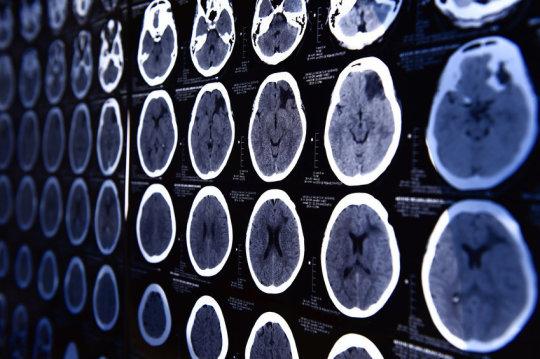 متا آنالیز های جدید نشان می دهند که مغز بزرگ منجر به ضریب هوشی بالا نمی شود