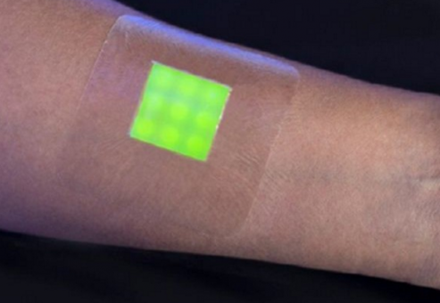 این چسب های پوشیدنی در تماس با جراحت هایی مانند سوختگی که در معرض عفونت هستند، رنگ فلوئورسنت آزاد کرده و به پزشکان برای درمان بهینه کمک می کند.