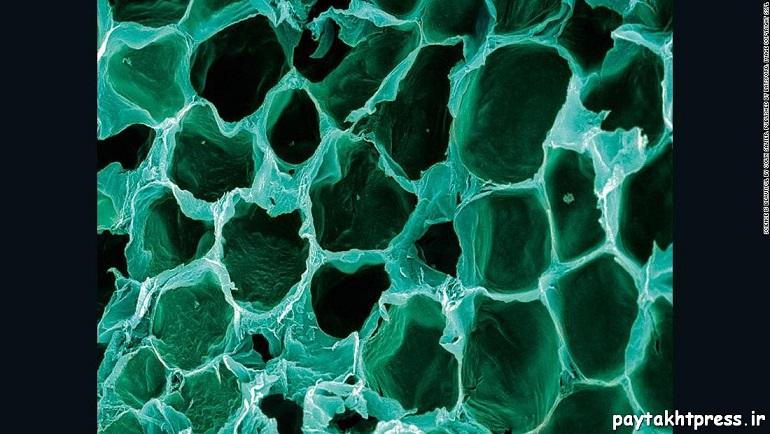 سلول های توخالی چربی؛ سلول های چربی جزء بزرگترین سلول های بدن محسوب میشوند. آنها لایه ای ضخیم زیر پوست انسان میسازند که به عنوان منبع انرژی استفاده میشود. در این شکل بخش زیادی از چربی نرمال در سلول ها محو شده و یک شکل لانه زنبوری برجا مانده است.