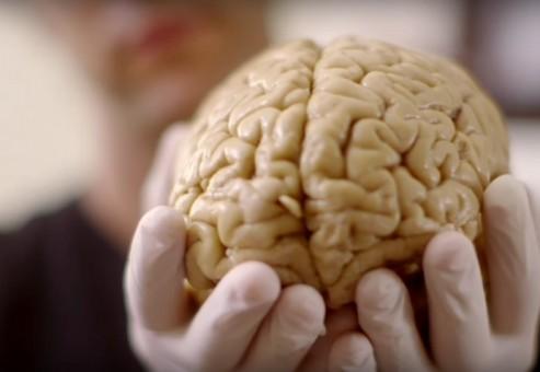 چگونه این مرد بدون ۹۰ درصد از مغز خود زندگی نرمالی دارد؟!