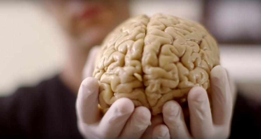چگونه این مرد بدون 90 درصد از مغز خود زندگی نرمالی دارد؟!