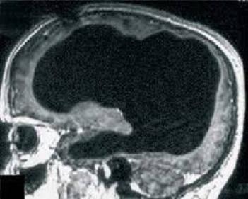 تصویر اسکن مغز این مرد فرانسوی – تجمع مایعات 90 درصد از مغز این فرد را از بین برده است.
