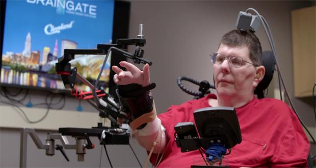 معلولین با استفاده از الکترود شبیهساز ذهنی قادرند دست خود را با ذهنشان به حرکت در آورند