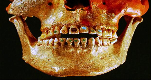 کشف قدیمی ترین ماده پر کننده دندان با قدمتی 13 هزار ساله در ایتالیا