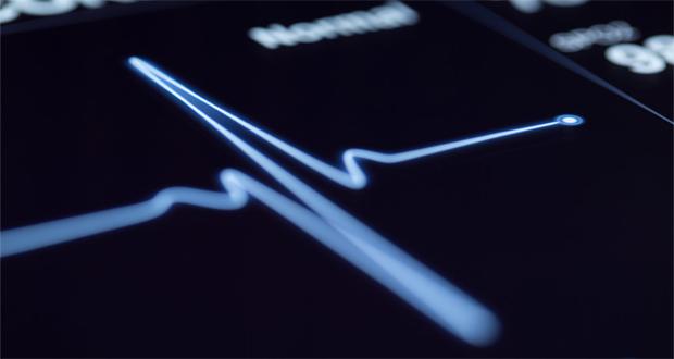 پژوهشگران با طراحی هوش مصنوعی توانستند خطر بروز سکتههای قلبی را پیشبینی کنند