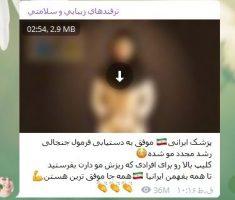 رفع ریزش مو پربازدیدترین پست های تلگرام ایرانی