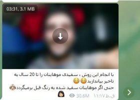 رفع سفیدی موی مردان  پربازدیدترین پست های تلگرام ایرانی