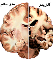 بررسی علائم آلزایمر