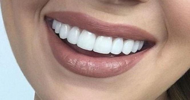 مراقبت های بعد از کامپوزیت دندان