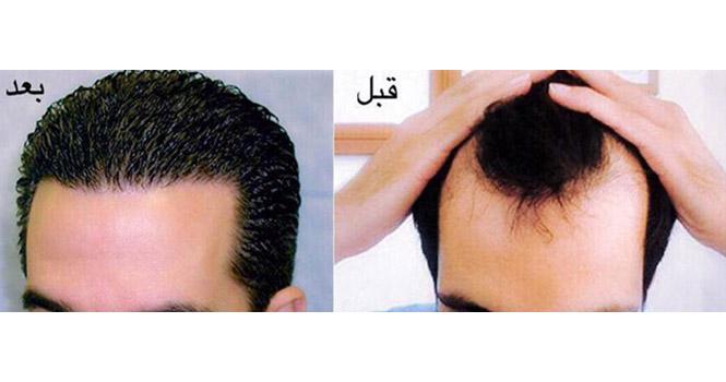 کاشت مو چیست؟ آشنایی با بهترین مرکز کاشت مو در ایران و روشهای مختلف آن
