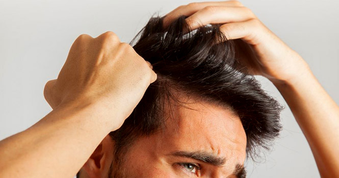 بهترین مرکز اسکالپ سر؛ روش جدید جایگزین متدهای قدیمی کاشت مو و تتو