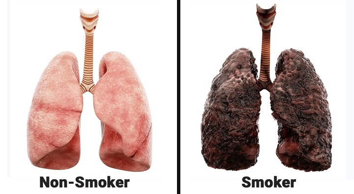 مصرف مداوم سیگار و مواد شیمیایی موجود در دخانیات، آسیبهای جدی به ریه و دستگاه تنفسی وارد میکند که در طول مدت زمان مصرف سیگار مشکلات وخیم تنفسی را ایجاد میکند.