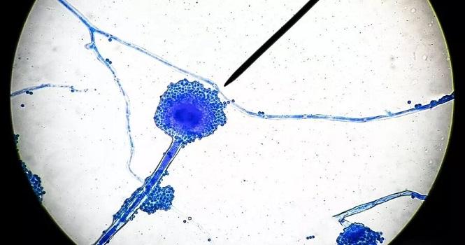 بیماری قارچ سیاه چیست ؟ علائم، نحوه انتقال، پیشگیری و درمان همه گیری جدید